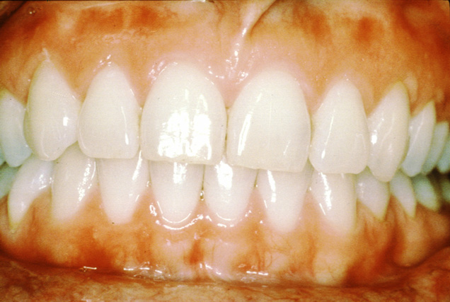 Periodontal (gum) Disease « SmilePlus's Blog